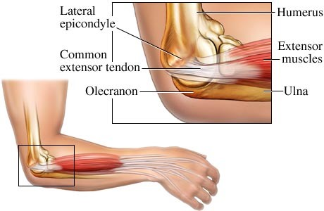 tennis-elbow-physiotherapy